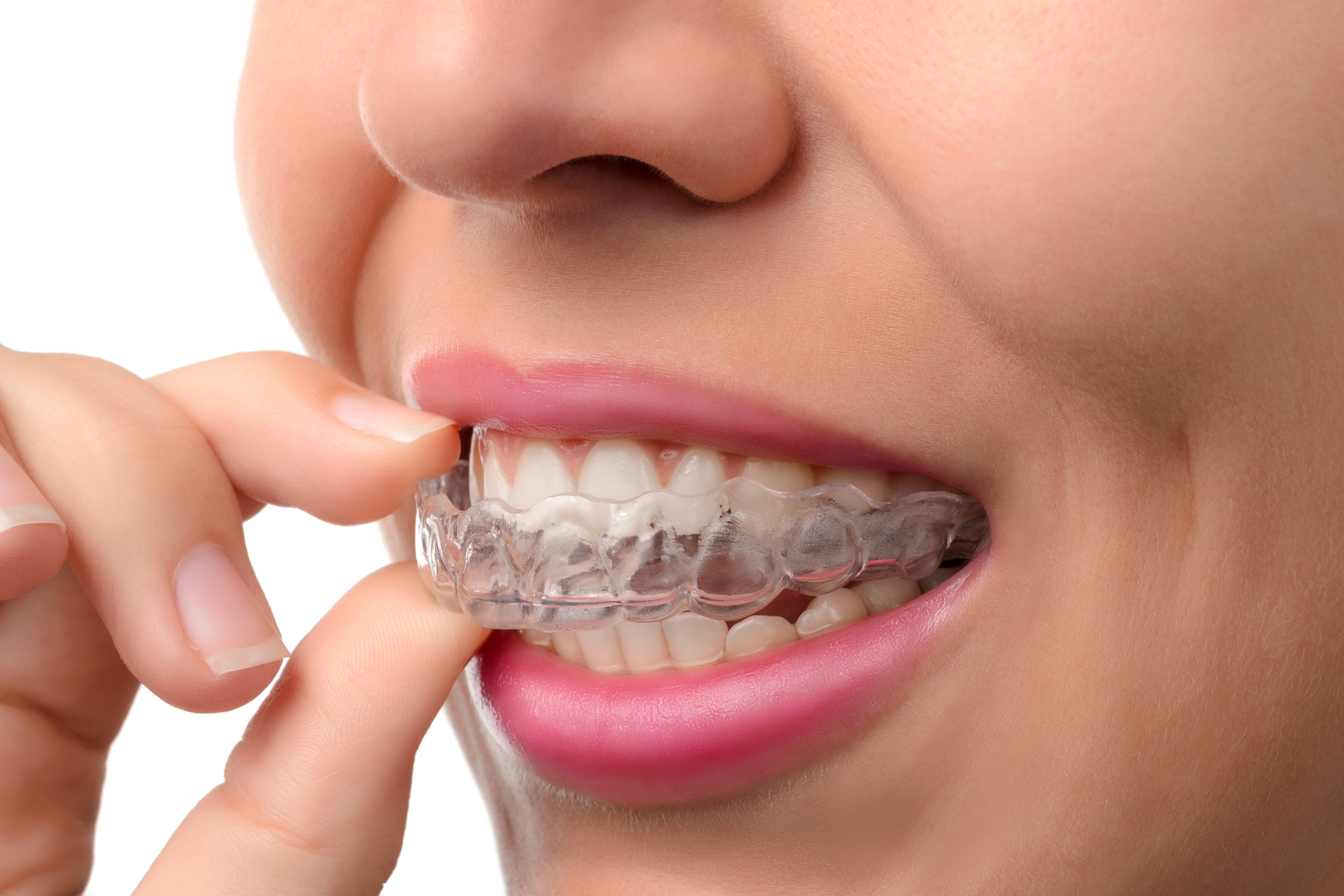 Georgia Dental Implant Center April The Top 5 Benefits of Invisalign Image1