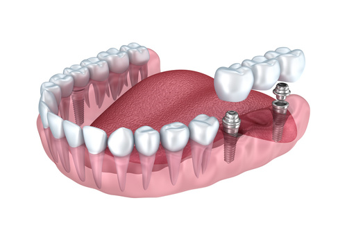 Georgia Dental Implant Center November 4 Common Questions that Are Asked about Cosmetic Image 2